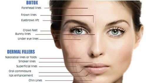 Dermal Fillers Beverly Hills CA